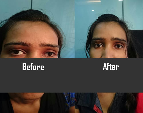 squint Surgery  in indore